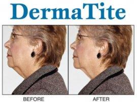 Dermatite Firming & Rejuvenating Neck Cream