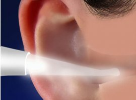 Lighted Ear Wax Remover (Free Shipping Today!)