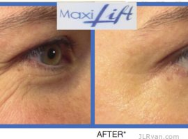 Maxilift Instant Firming Serum for The Face and Neck, Silver